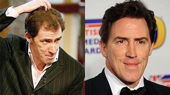 7 british celebrities who had hair transplant
